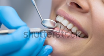 dentist-examining-patients-teeth-600w-364820015